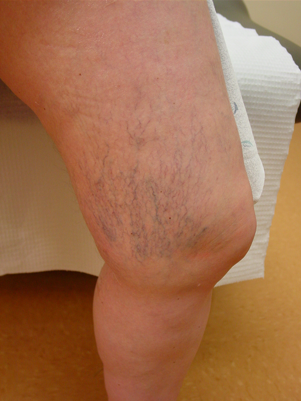 relationship between varicose veins and dvt